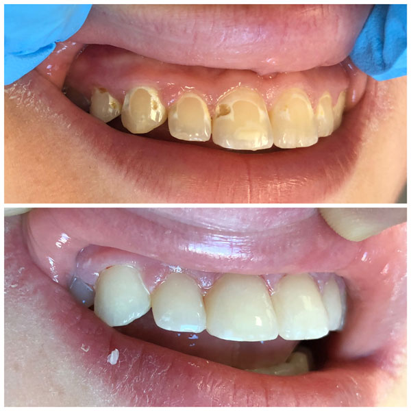 cosmetic-bonding-before-and-after-1