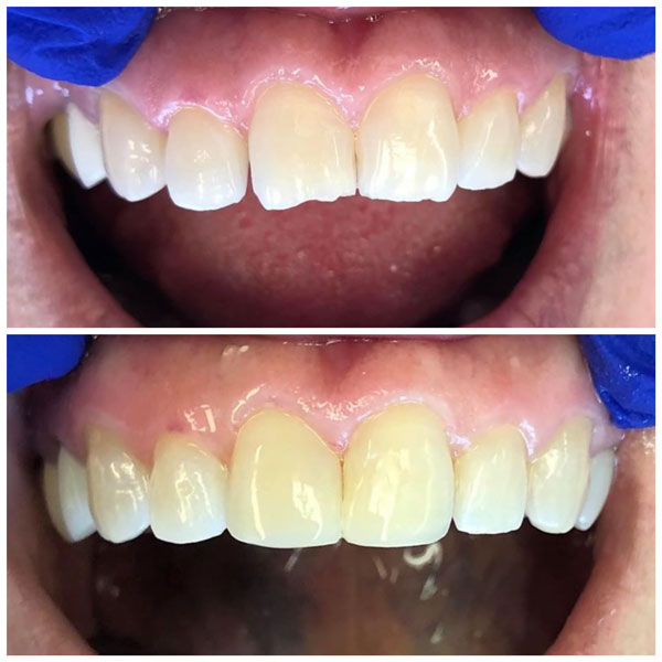 cosmetic-bonding-before-and-after-10