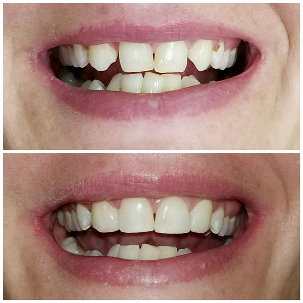 cosmetic-bonding-before-and-after-11