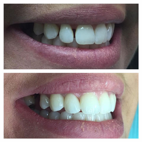 cosmetic-bonding-before-and-after-12