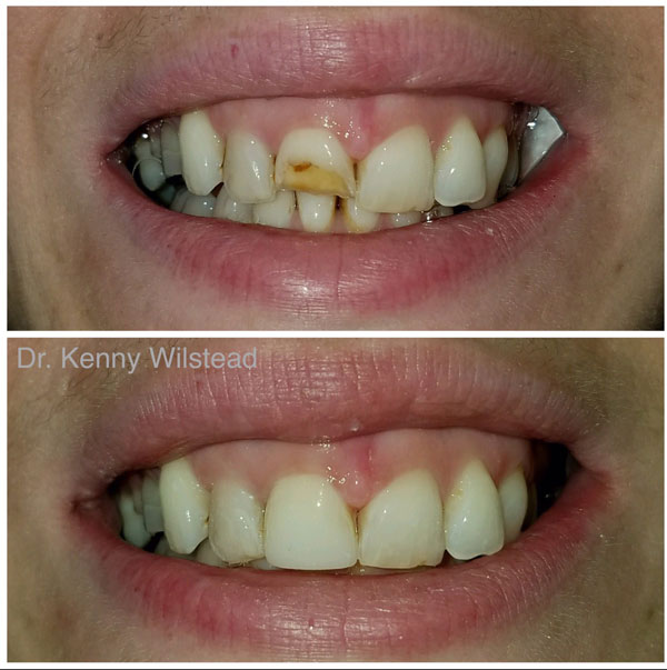 cosmetic-bonding-before-and-after-2