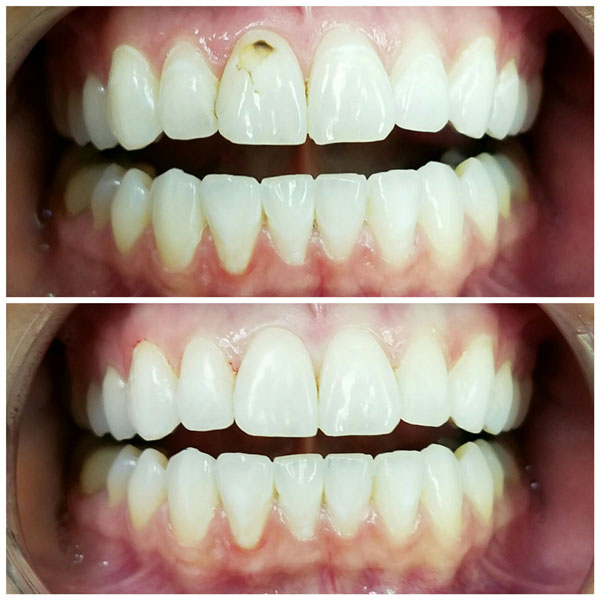 cosmetic-bonding-before-and-after-3