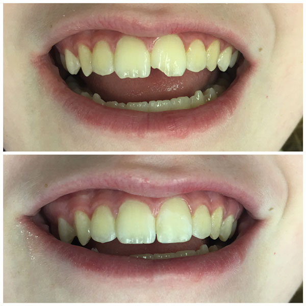 cosmetic-bonding-before-and-after-4