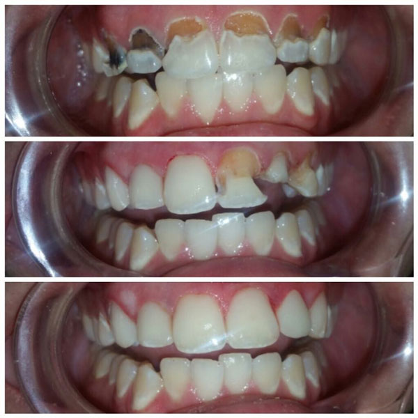 cosmetic-bonding-before-and-after-5