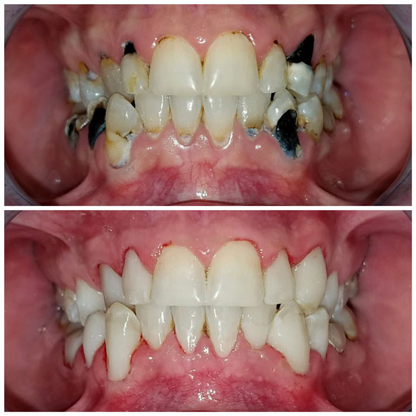 cosmetic-bonding-before-and-after-6