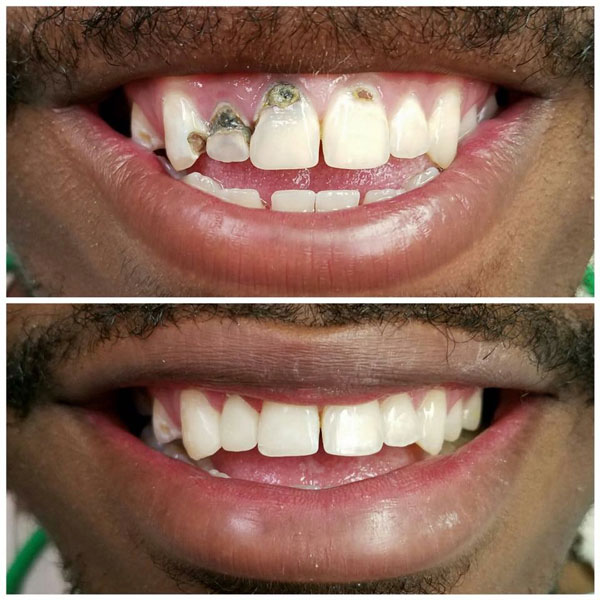 cosmetic-bonding-before-and-after-8