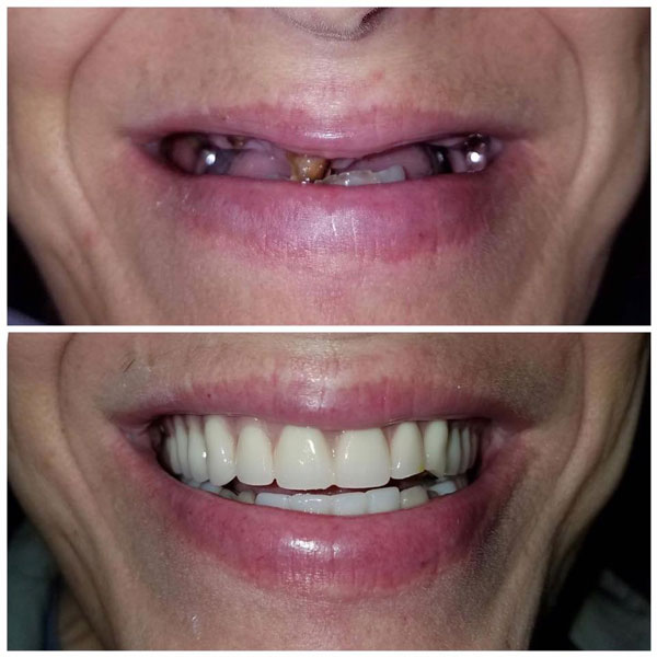 dentures-before-and-after-3