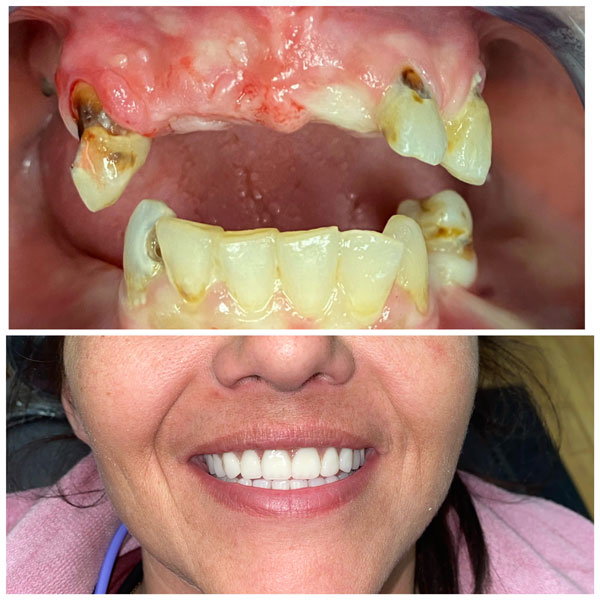 dentures-before-and-after-5
