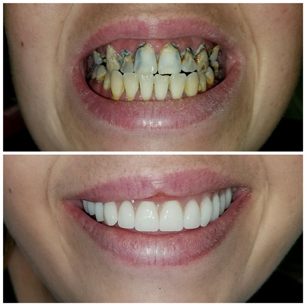 dentures-before-and-after-7