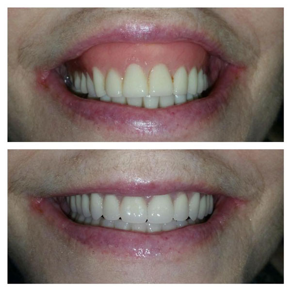 dentures-before-and-after-8
