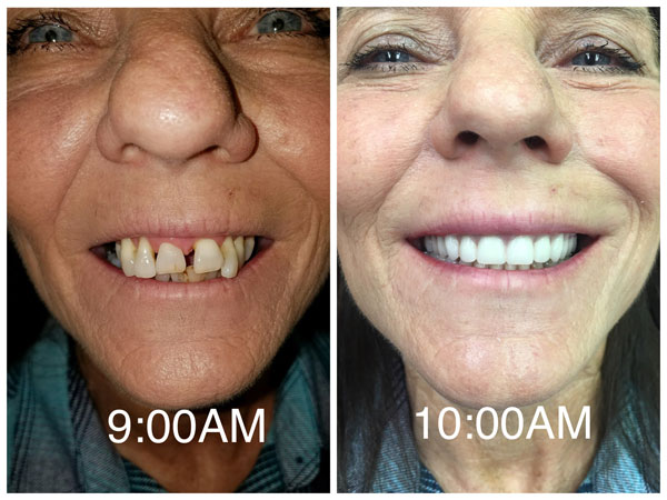 dentures-before-and-after-9