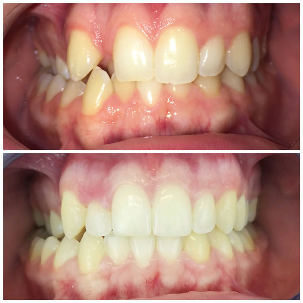 invisalign-before-and-after-1
