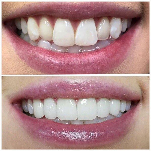 porcelain-veneers-before-and-after-2