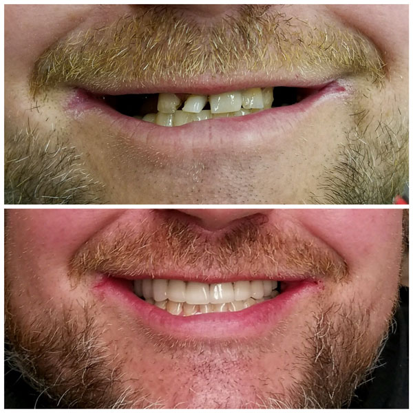 porcelain-veneers-before-and-after-4