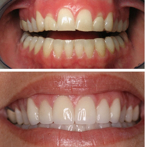 porcelain-veneers-before-and-after-6