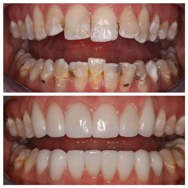 porcelain-veneers-before-and-after-8