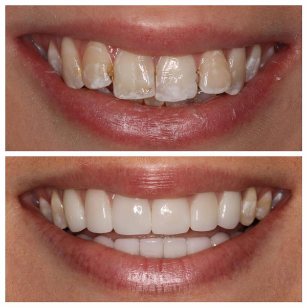 porcelain-veneers-before-and-after-9