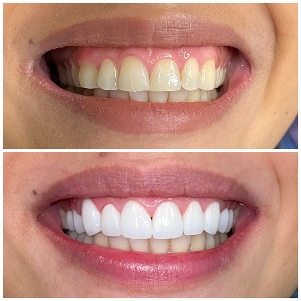 smile-makeovers-before-and-afters-10
