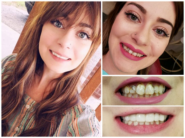smile-makeovers-before-and-afters-11