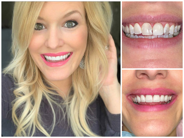 smile-makeovers-before-and-afters-4