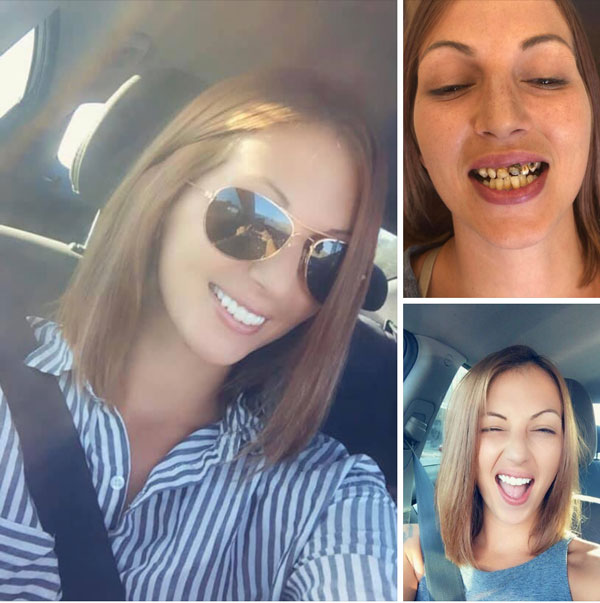 smile-makeovers-before-and-afters-8