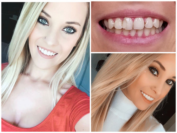smile-makeovers-before-and-afters-9