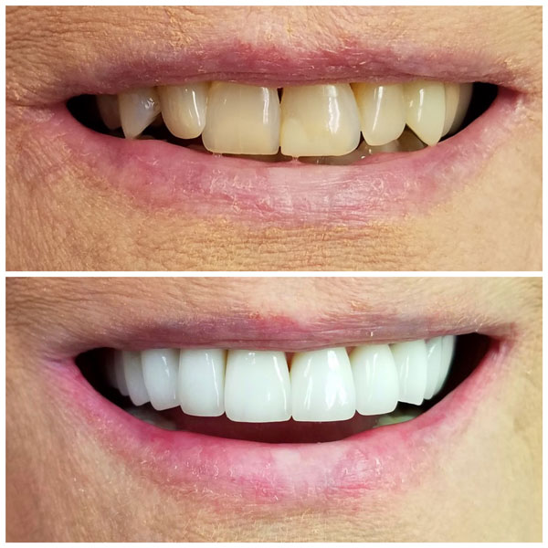teeth-whitening-before-and-after-1