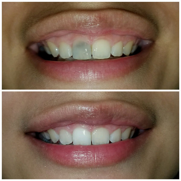 teeth-whitening-before-and-after-2